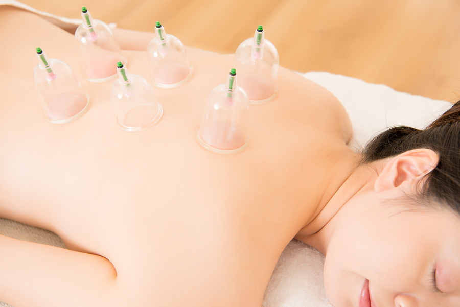 traditional chinese acupuncture cupping moxa wimbledon